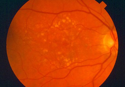 Picture Of A Retina After Eye Surgery In Brooklyn, NY - Brighton Eye Associates