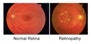 Image Of Retina Ready For Eye Laser Treatment In Brooklyn, NY - Brighton Eye Associates
